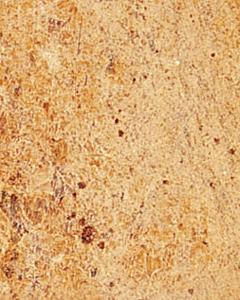 Madurai Gold Granite Slabs Wholesalers